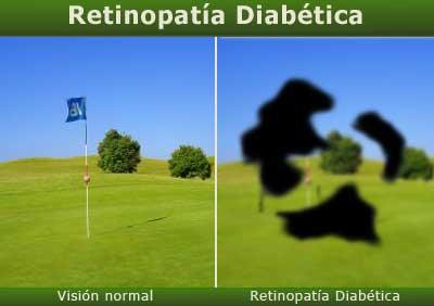 Retinopatía para diabetes