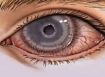 Úlceras e infecciones corneales