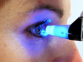 Iridotomía para glaucoma